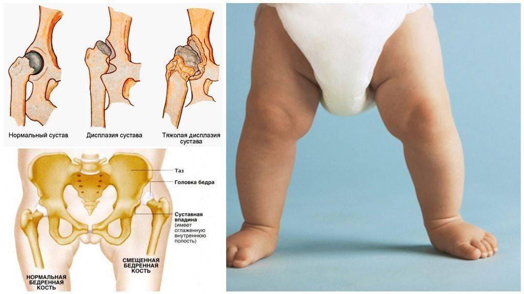 Признаки и лечение дисплазии тазобедренных суставов у детей