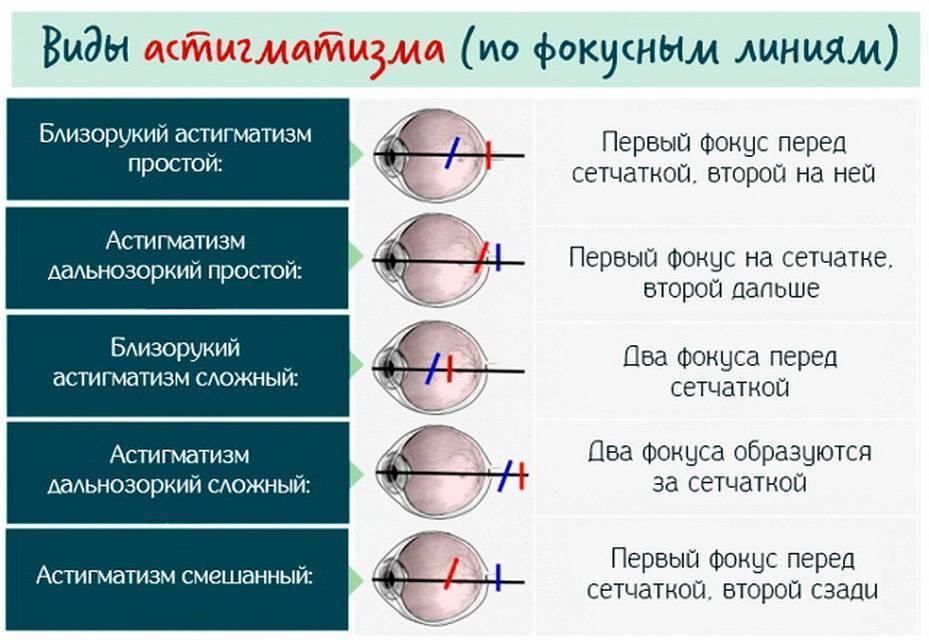 Как вылечить близорукость у ребенка? - энциклопедия ochkov.net