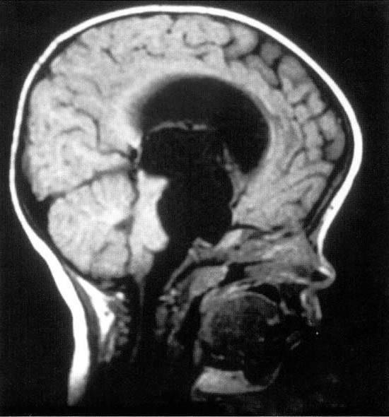 Киста головного мозга формирует дцп | сайт доктора никонова