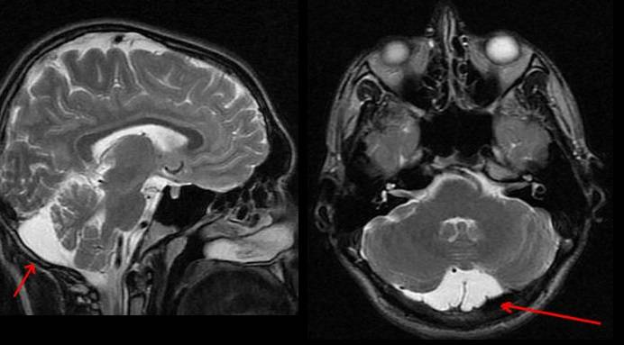 Арахноидальная киста. симптомы, диагностика и лечение арахноидальной кисты головного мозга