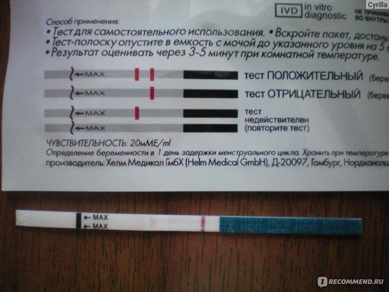 Когда идти к гинекологу после... ответы на 10 самых популярных вопросов * клиника диана в санкт-петербурге