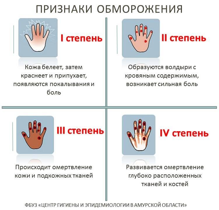 Стрептодермия: причины, симптомы, как заражаются, куда обратиться, кто лечит, стрептодермия у детей, взрослых, беременных