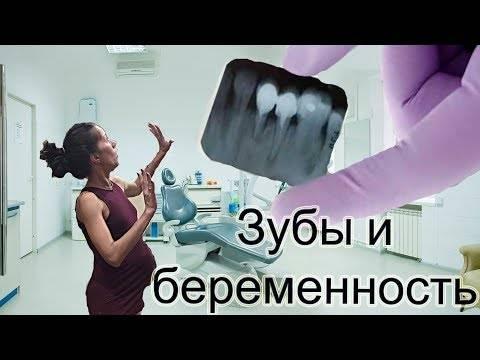 3d-снимок зубов: зачем нужно делать и что показывает