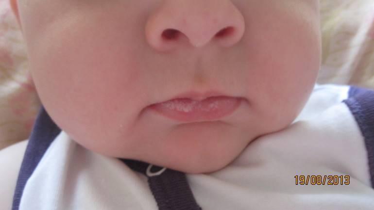 Микроповреждения влагалища. причины появления микроповреждений во влагалище