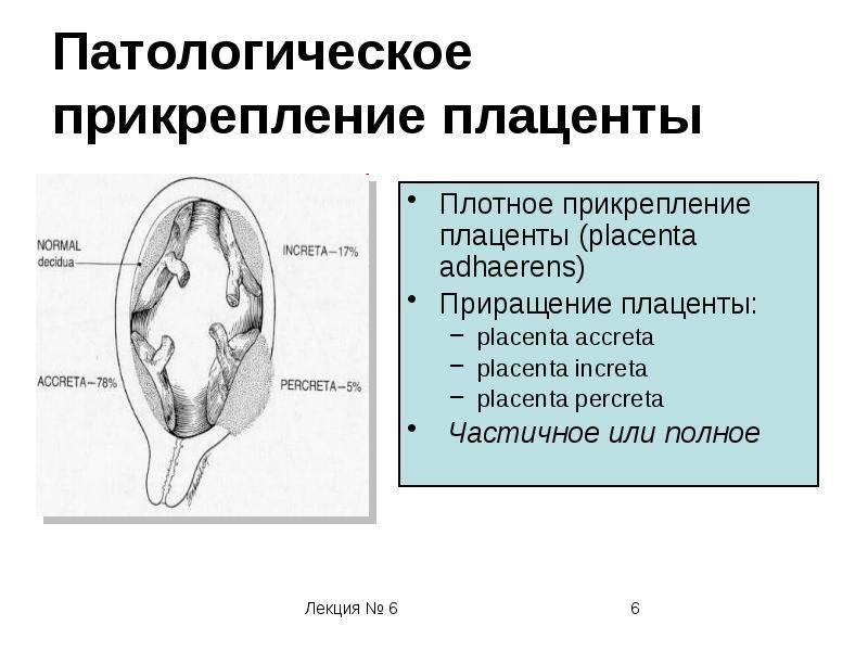 Низкое расположение плаценты