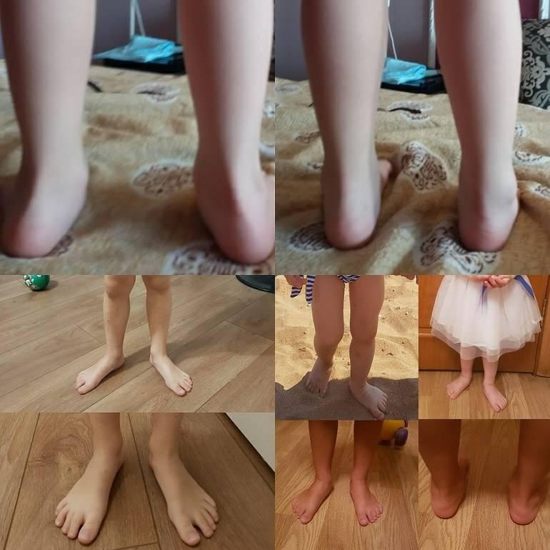 Правильная физкультура при артрозе коленного сустава