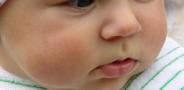 Почему у ребенка синяя переносица — причины появления синих венок