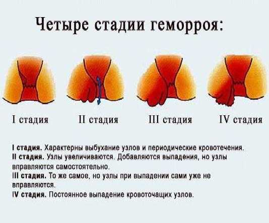 Кровь в стуле, на белье и туалетной бумаге – тревожный симптом