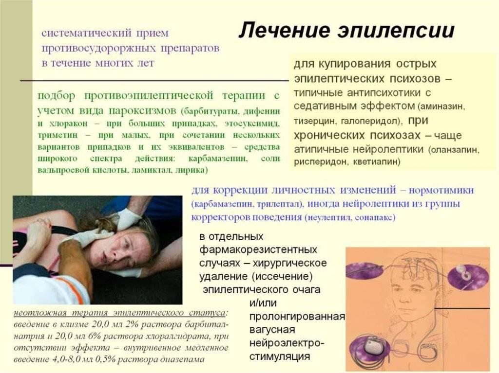 Клинические формы, стадии и симптомы эпилепсии