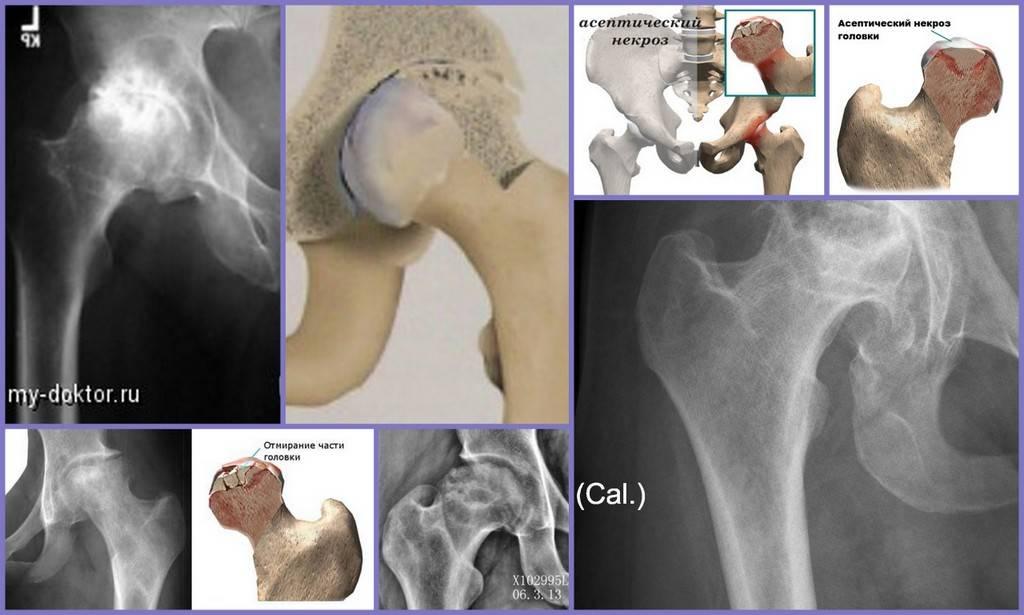 Реберный хондрит (синдром титце)