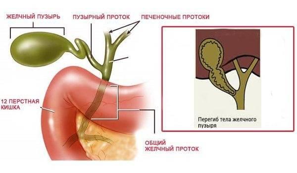 Холангит. симптомы и лечение холангита!