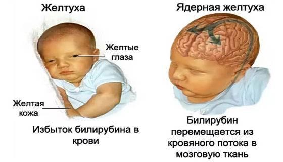 Норма билирубина у новорожденных - ответ детского врача