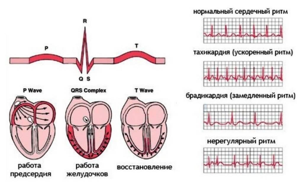 Аритмия - нарушения ритма сердца