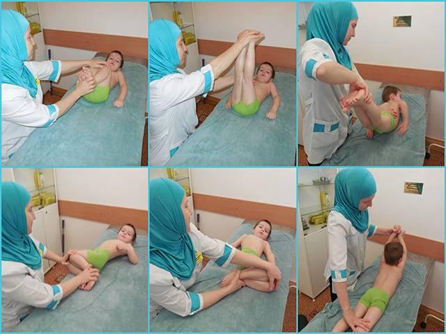 Гимнастика при дисплазии тазобедренных суставов у детей: видео лфк для новорожденных и малышей до года