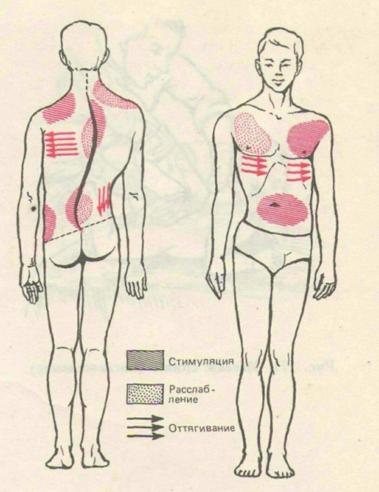 Помогает ли мануальная терапия при сколиозе | лечение сколиоза в москве и санкт-петербурге в клинике «тибет»