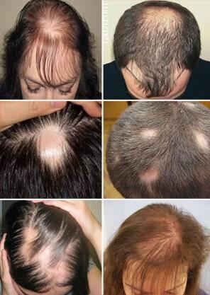 Как растут волосы у новорожденных на голове