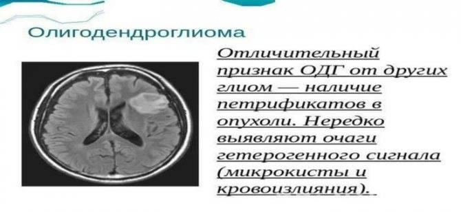 Опухоль височной доли головного мозга
