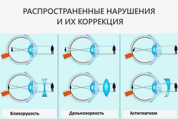 Спазм аккомодации: лечение «ochkov.net»