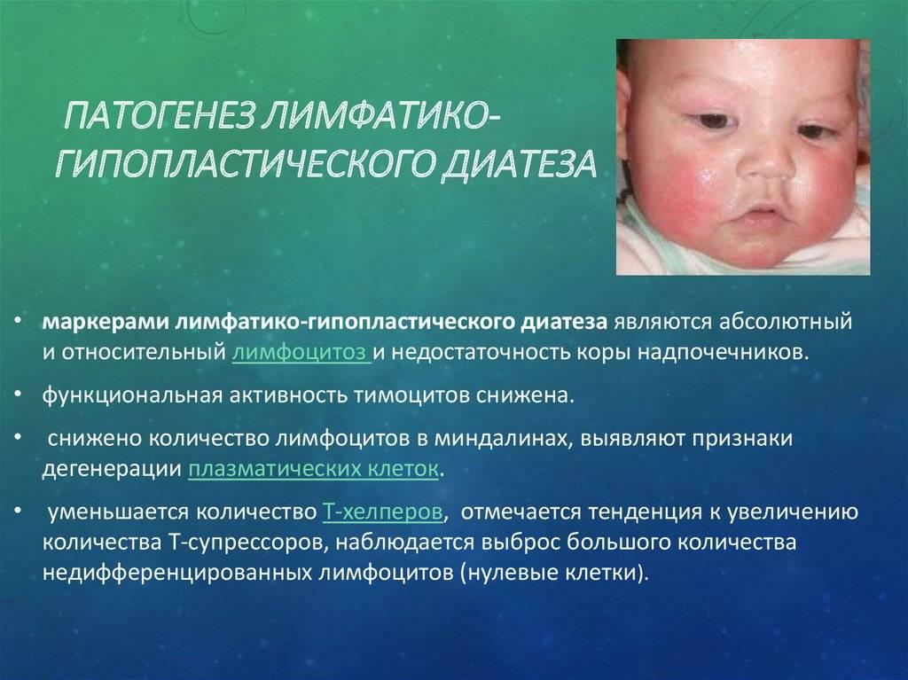 Диатез. нервно-артритический диатез у детей: причины, симптомы, лечение