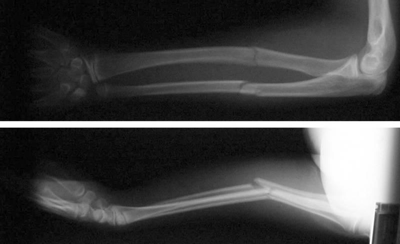 Симптомы и последствия перелома копчика   компетентно о здоровье на ilive
