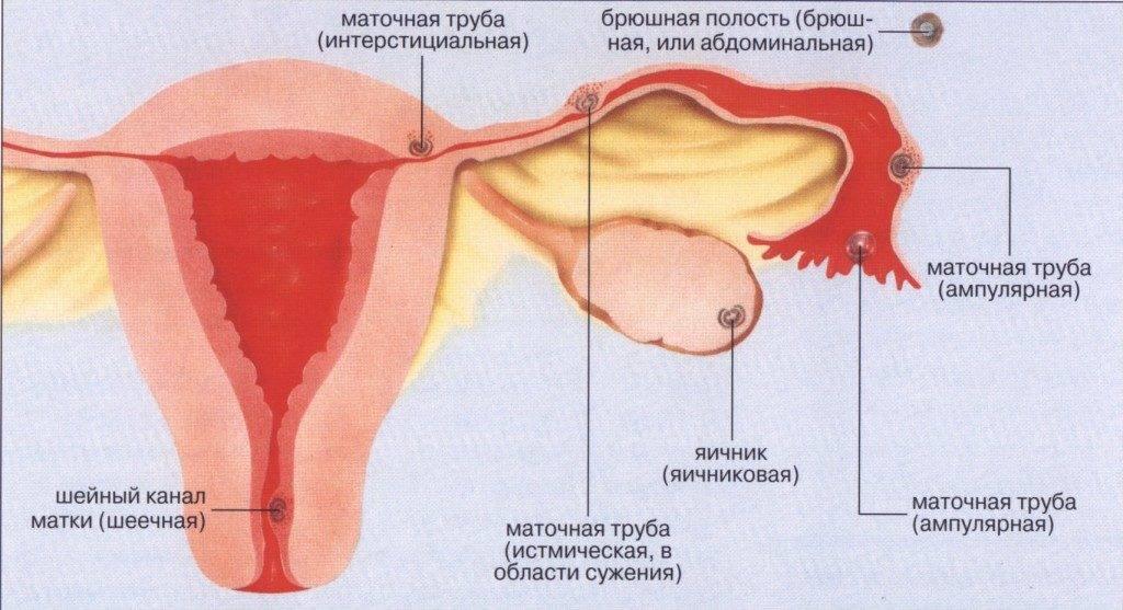 Почему перед месячными болят яичники, может ли это означать беременность?