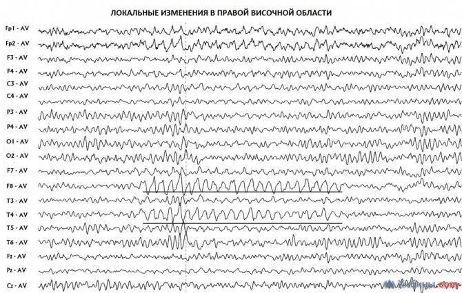 Электроэнцефалография (ээг) и реоэнцефалография (рэг): методика исследований