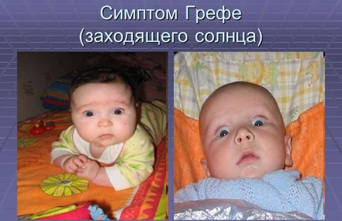 Новорожденный закатывает глаза: основные причины и лечение
