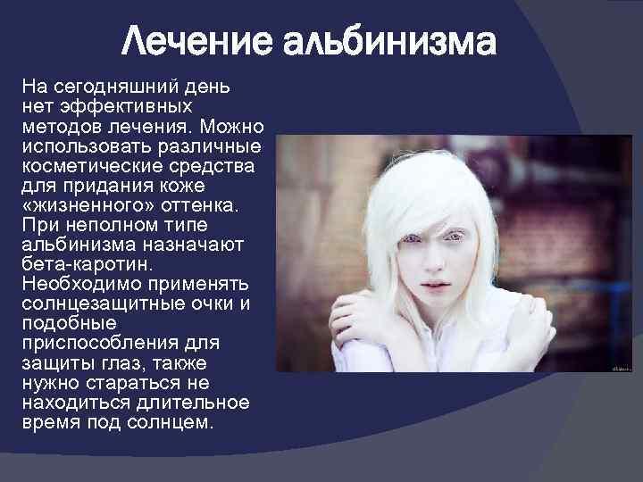 Альбинизм [lifebio.wiki]