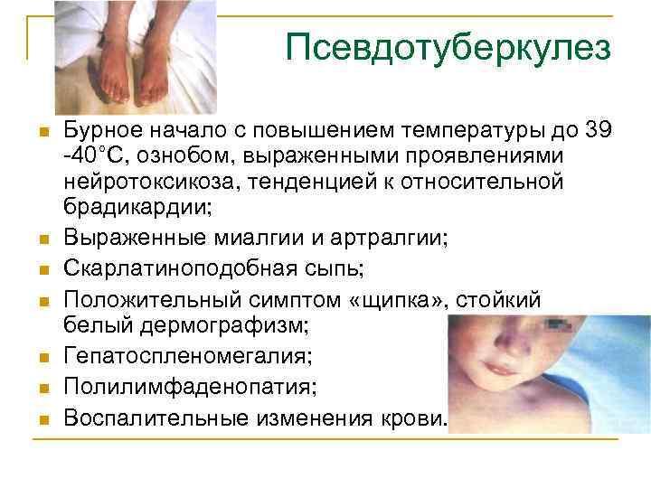 6 основных клинических форм псевдотуберкулёза у детей