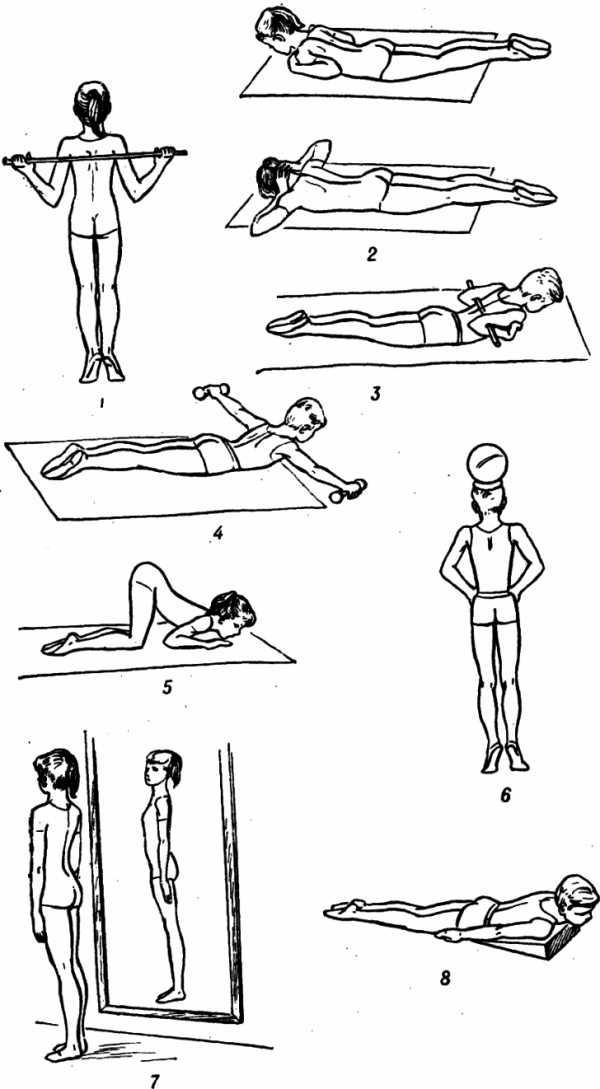 Комплекс упражнений при сколиозе – как правильно подобрать