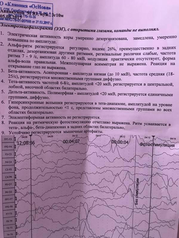 Рутинная ээг головного мозга от 30 до 60 минут   центр диагностики и лечения эпилепсии в москве epihelp