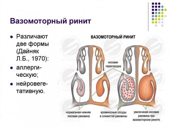 Вазомоторный ринит у детей: симптомы и лечение заболевания, профилактика