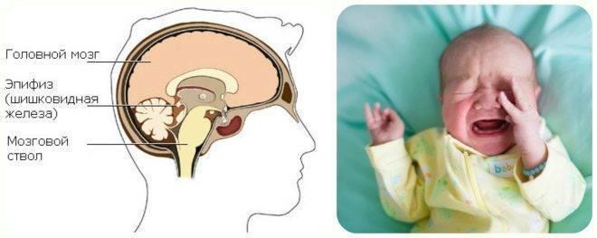 Киста головного мозга у взрослого, ребенка, новорожденного. симптомы и лечение, чем опасна киста в голове - medside.ru