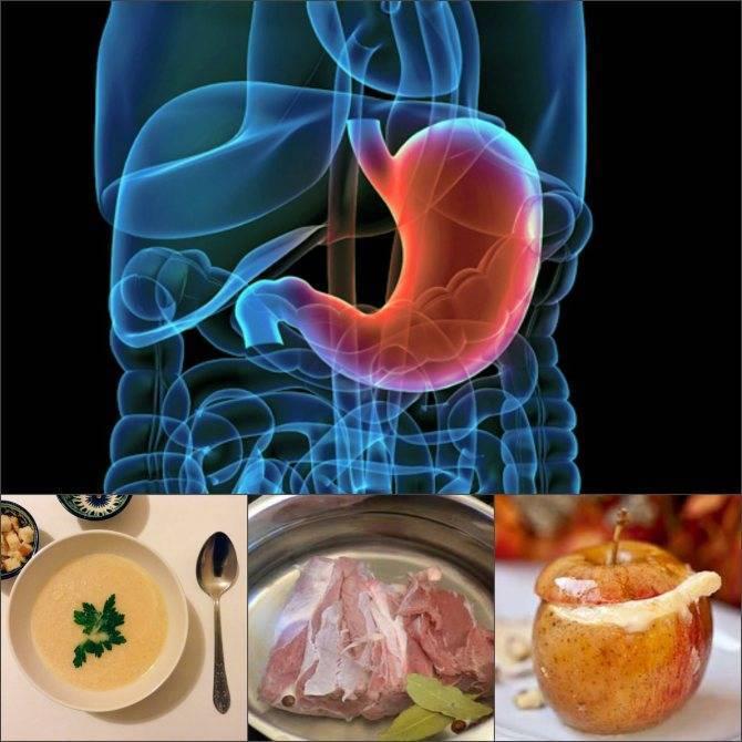 Пародонтит | симптомы и лечение пародонтита | компетентно о здоровье на ilive