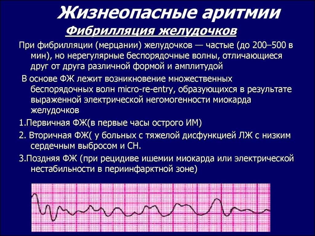 Аритмия — симптомы, лечение, профилактика