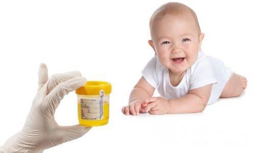 Белые хлопья в моче у мужчин, женщин, ребенка: причины появления