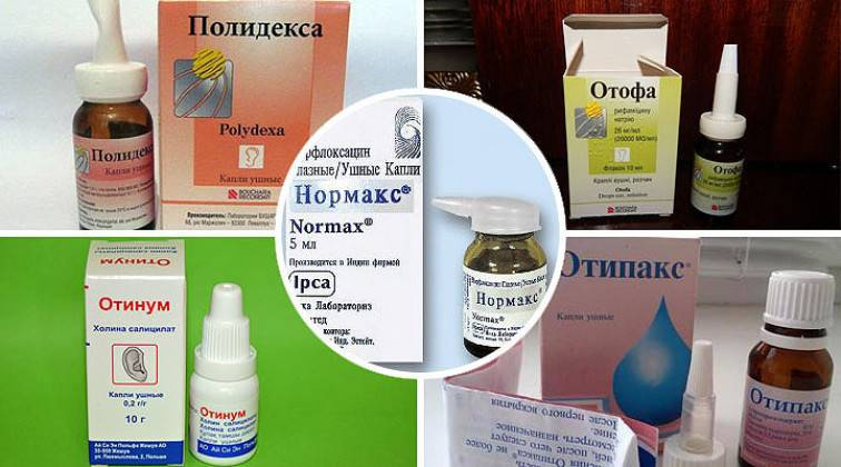 Лечение отита, симптомы хронического воспаления острого среднего уха у взрослых, лекарства