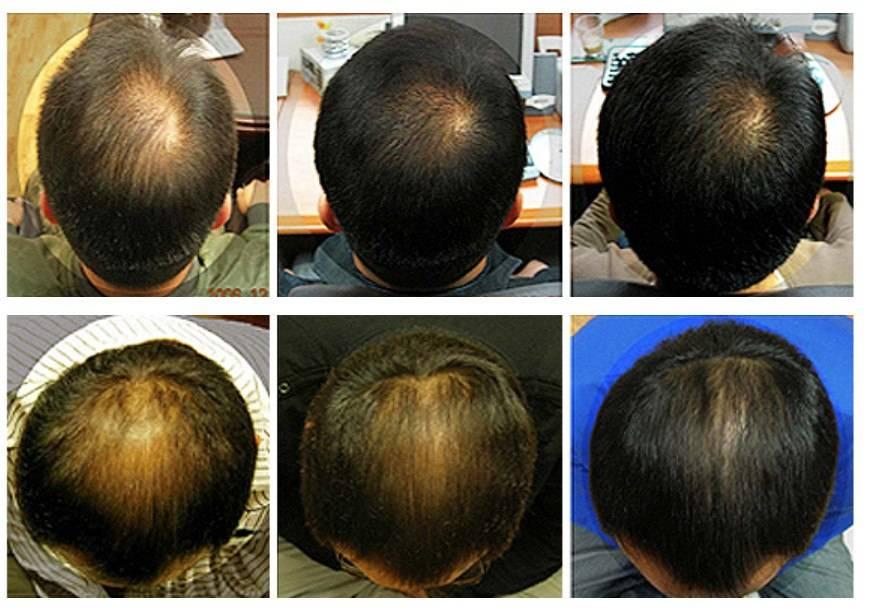 У грудничка плохо растут волосы на голове: жидкие, короткие, тонкие