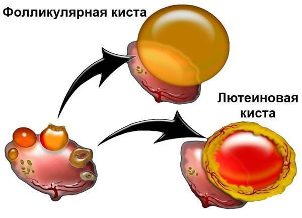 Гиперплазия эндометрия. что это и как лечится?
