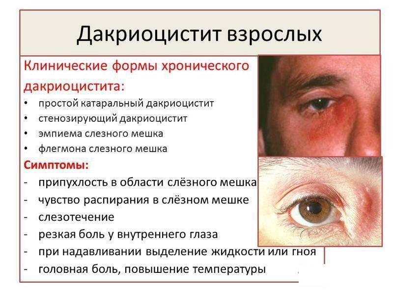 Дистрофические заболевания сетчатки: формы, диагностика и лечение