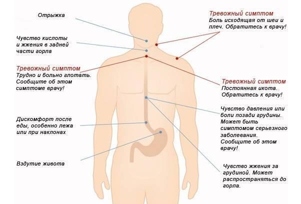 Симптомы мигрени, причины возникновения и лечение   как снять приступ мигрени?