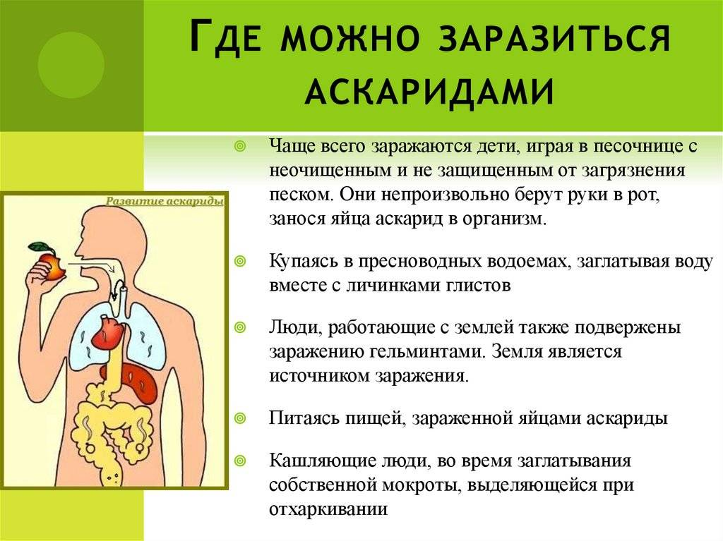 Симптомы аскаридоза у ребёнка - sonyaclub