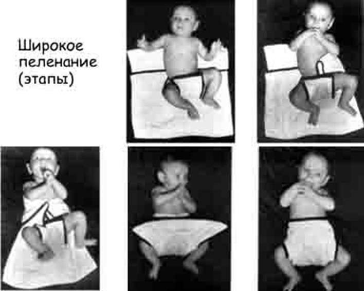 Видео-инструкция для проведения гимнастики и массажа при дисплазии тазобедренных суставов у детей