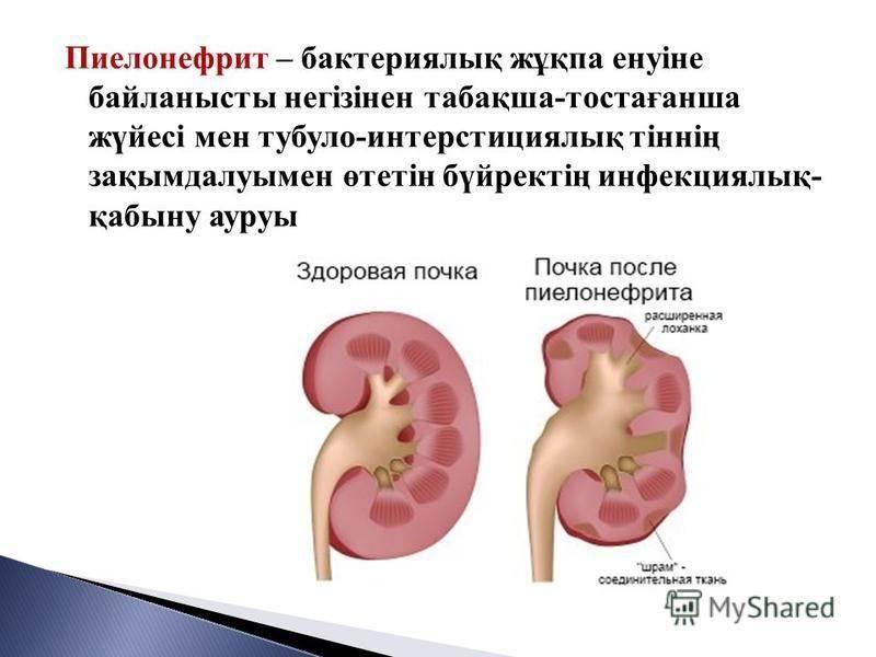 Пиелонефрит (инфекция почек)