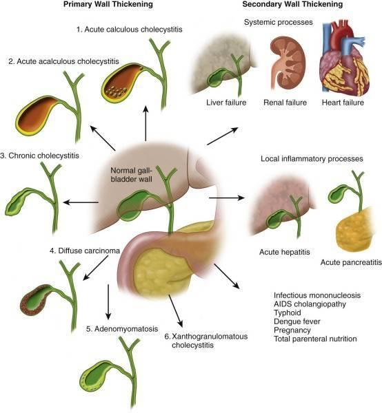 Дискинезия желчевыводящих путей у детей