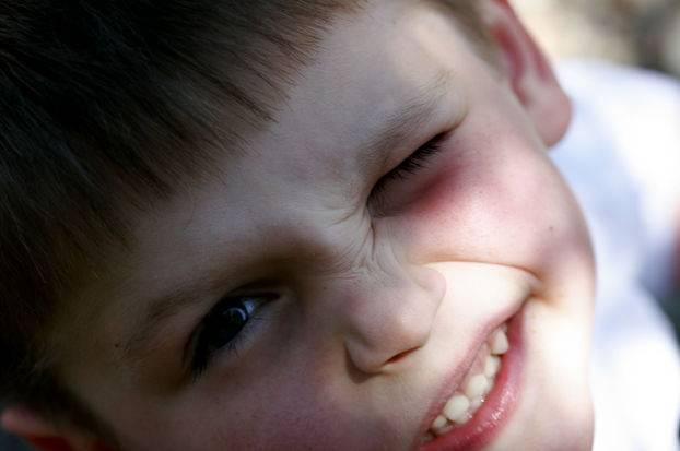 Нервные тики. как с ними бороться? лечение тиков у детей