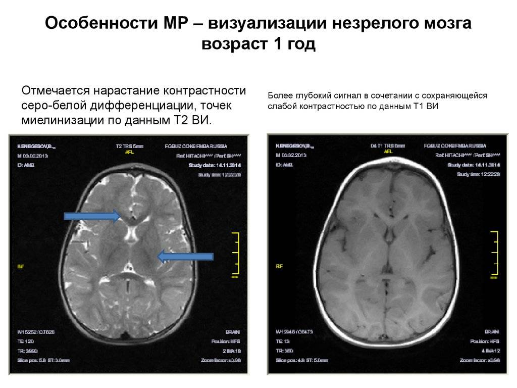 Мрт головного мозга, что показывает  подготовка, как делают, расшифровка мрт головного мозга