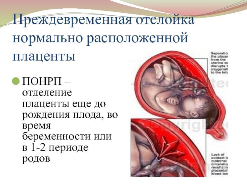 """О """"старой"""" плаценте замолвите слово... преждевременное созревание плаценты."""