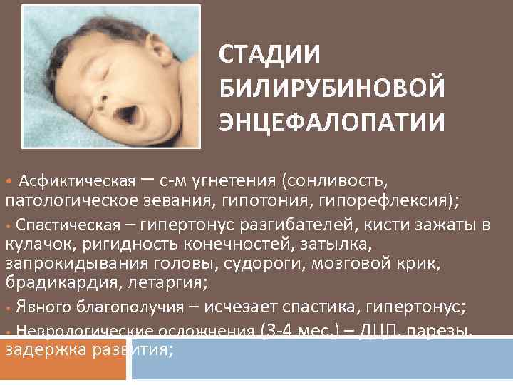 Лечение перинатальной энцефалопатии у детей в москве – доктор никонов