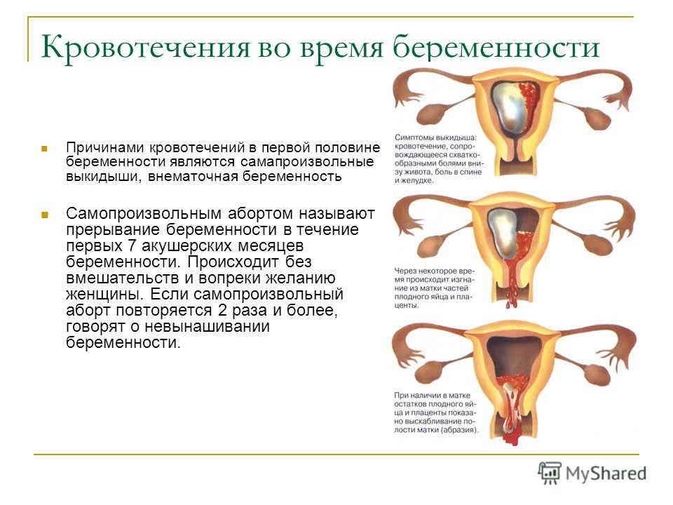 Отзывы про медикаментозный аборт